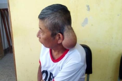 Humilde agricultor vive con tumor en la cabeza: